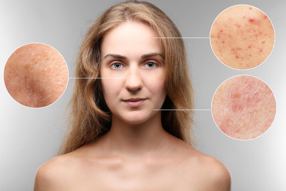 Problemi na koži lica: Možda ih izaziva hrana koja vam ne odgovara